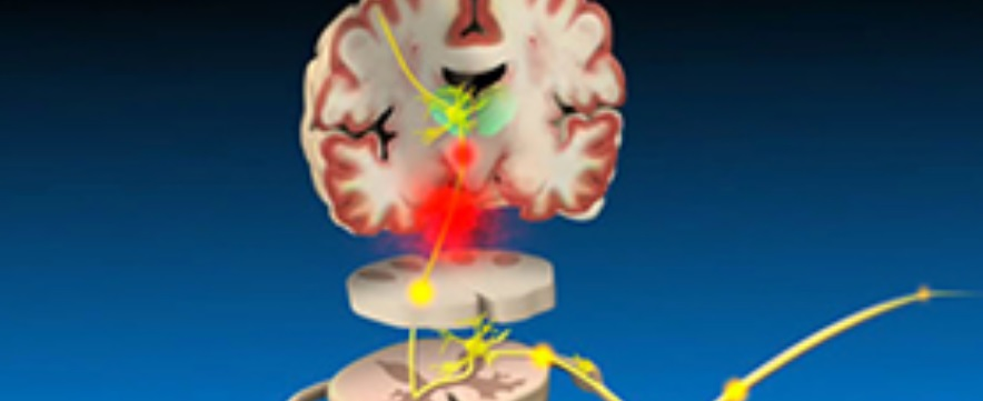 Neuropathic pain: identification and management in primary care